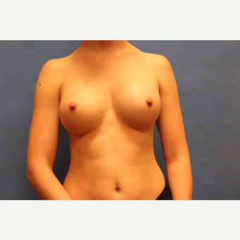 18-24 year old woman treated with Breast Augmentation after 3692010