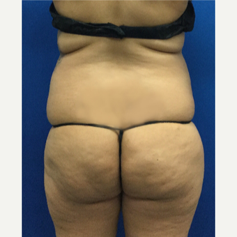 35-44 year old woman treated with Brazilian Butt Lift before 3697572
