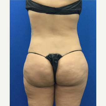 35-44 year old woman treated with Brazilian Butt Lift after 3697572