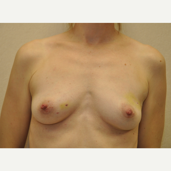 45-54 year old woman treated with Breast Reconstruction before 3127784
