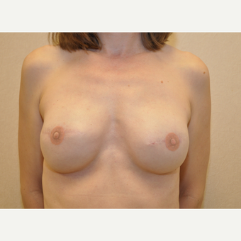 45-54 year old woman treated with Breast Reconstruction after 3127784