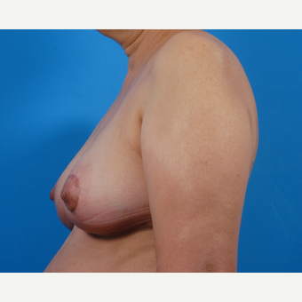 55-64 year old woman treated with Breast Reduction after 3444929