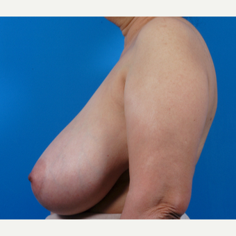 55-64 year old woman treated with Breast Reduction before 3444929