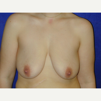25-34 year old woman treated with Breast Lift before 3766222