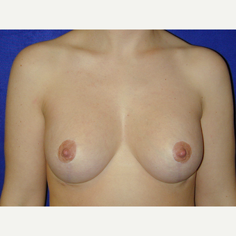 25-34 year old woman treated with Breast Lift after 3766222