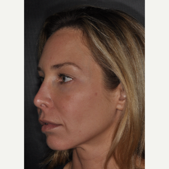35-44 year old woman treated with Revision Rhinoplasty 2 weeks post-op before 3452237