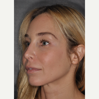 35-44 year old woman treated with Revision Rhinoplasty 2 weeks post-op after 3452237