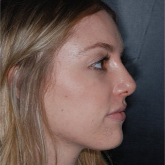 18-24 year old woman treated with Septoplasty after 1998799