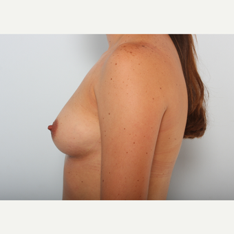 Breast Augmentation before 3425478
