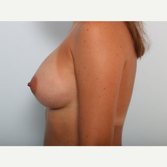 Breast Augmentation after 3425478