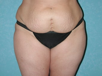 43 Year Old Female, Abdominoplasty with VASER Lipo Hips, Flanks, Thighs before 1366430