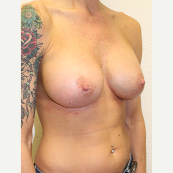 35-44 year old woman treated with Breast Augmentation after 3549722