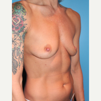 35-44 year old woman treated with Breast Augmentation before 3549722