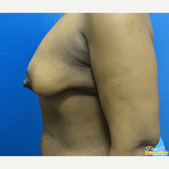 25-34 year old woman treated with Breast Augmentation before 3646180