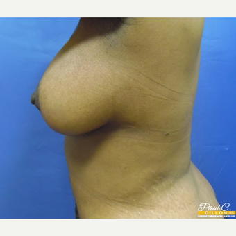 25-34 year old woman treated with Breast Augmentation after 3646180