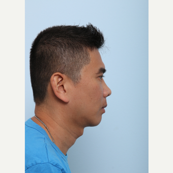 Chin Implant after 3590168