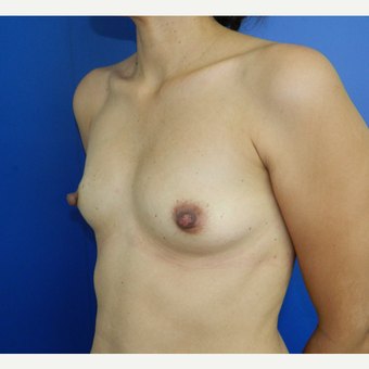 35-44 year old woman treated with Breast Augmentation before 3060311