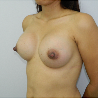 35-44 year old woman treated with Breast Augmentation after 3060311