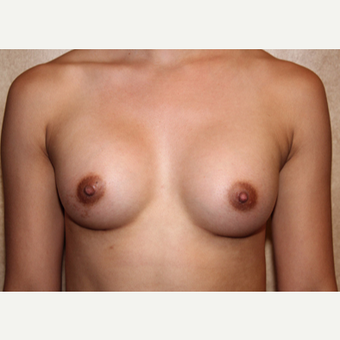 Saline Implants - Breast Augmentation after 3324918