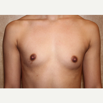 Saline Implants - Breast Augmentation before 3324918