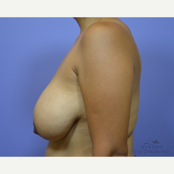 35-44 year old woman treated with Breast Lift before 3329464