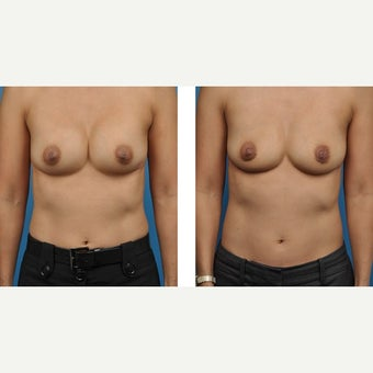 38 year old woman treated with Breast Implant Removal before 2524207