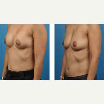 38 year old woman treated with Breast Implant Removal after 2524207