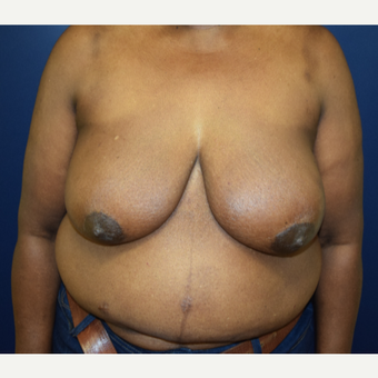 65-74 year old woman treated with Breast Reconstruction before 3056334