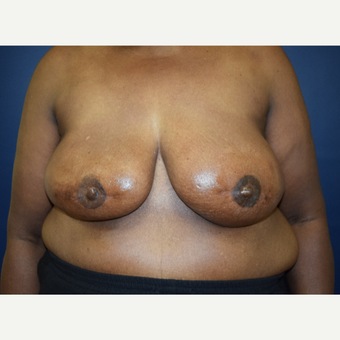 65-74 year old woman treated with Breast Reconstruction after 3056334