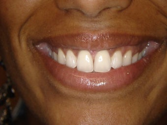 Treatment of gapp teeth with Invisalign after 1125716