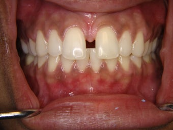 Treatment of gapp teeth with Invisalign before 1125716