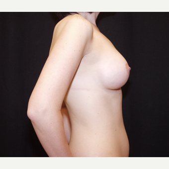 35-44 year old woman treated with Breast Implants after 3602960