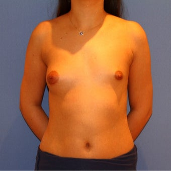 18-24 year old woman treated with Breast Augmentation before 1773340