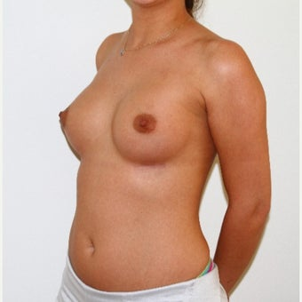 18-24 year old woman treated with Breast Augmentation 1773340