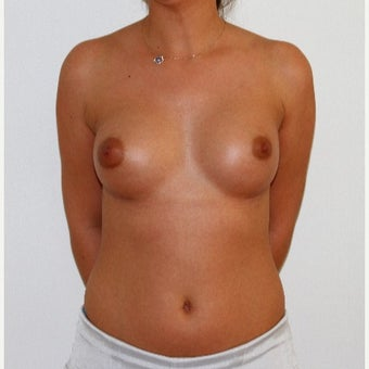 18-24 year old woman treated with Breast Augmentation after 1773340