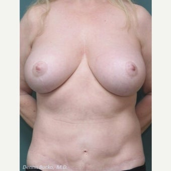 55-64 year old woman treated with Breast Reduction after 2252159