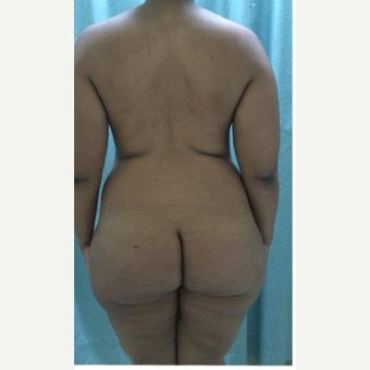 35-44 year old woman treated with Fat Transfer before 2017390