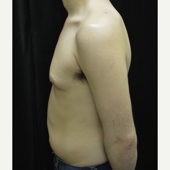 25-34 year old man treated with Liposuction before 3418680