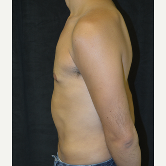25-34 year old man treated with Liposuction after 3418680