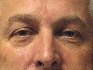 Browlift&Blepharoplasty (Eyes) before 1092915