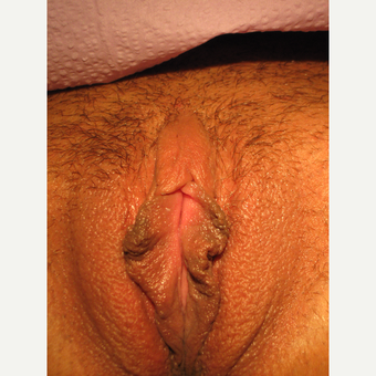 25-34 year old woman treated with Clitoral Hood Reduction before 3700347