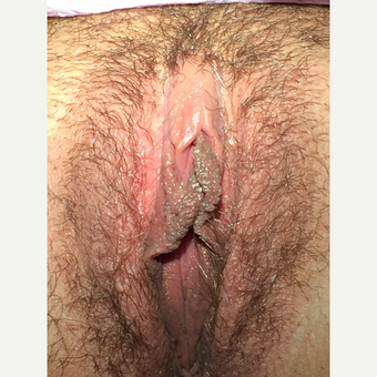 25-34 year old woman treated with Clitoral Hood Reduction after 3700347