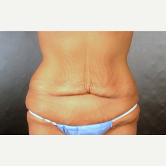 35-44 year old woman treated with Tummy Tuck before 3220261