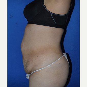 45-54 year old woman treated with No-Drain Tummy Tuck before 3655712