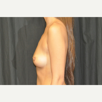 25-34 year old woman treated with Breast Augmentation before 3502290