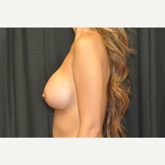 25-34 year old woman treated with Breast Augmentation after 3502290