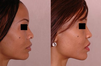 Rhinoplasty before 677280