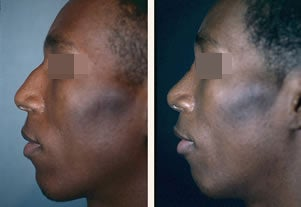 Male Patient, Rhinoplasty before 920844