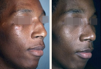 Male Patient, Rhinoplasty after 920844