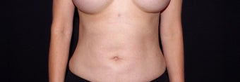 35-44 year old woman treated with Liposuction and Breast Implant Exchange after 2998897
